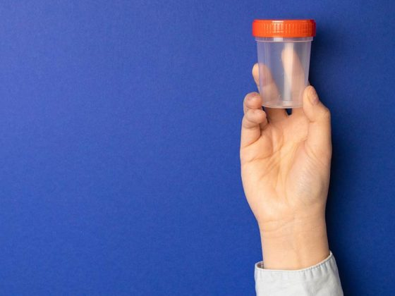 Doctor holding a plastic container